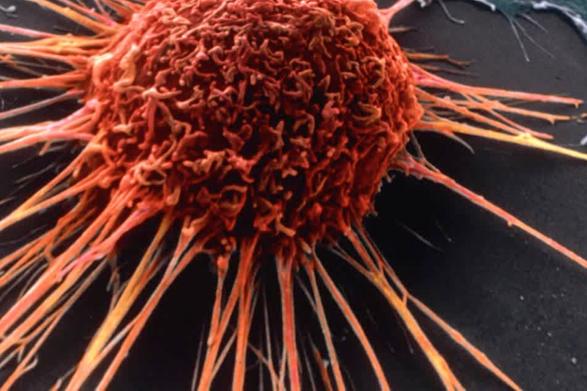Australia guerra al cancro