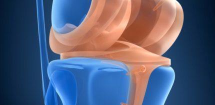 Operazione al menisco
