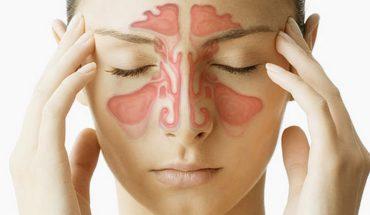 Sinusite rimedi naturali