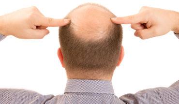 Costo trapianto capelli