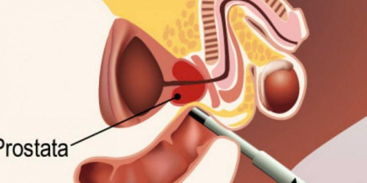 prostata ingrossata dieta e rimedi naturali